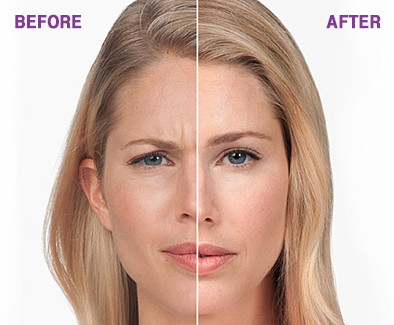 Botox Treatment - Before and After