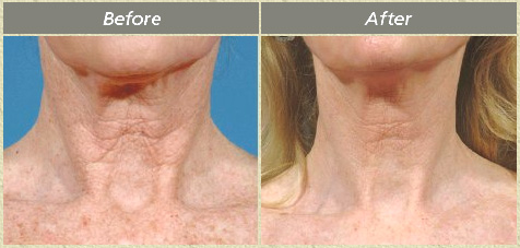Fraxel Treatments | Skin Resurfacing | Flower Mound Dermatology