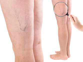Sclerotherapy - Flower Mound, Texas