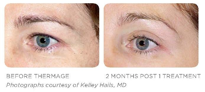 Thermage Treatment - The Eyes