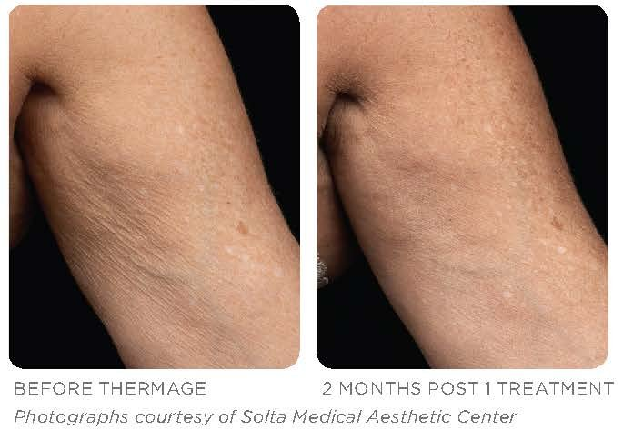 Thermage  Body Treatment